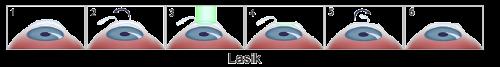 LASIK-bis